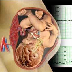 Фетоплацентарной при беременности